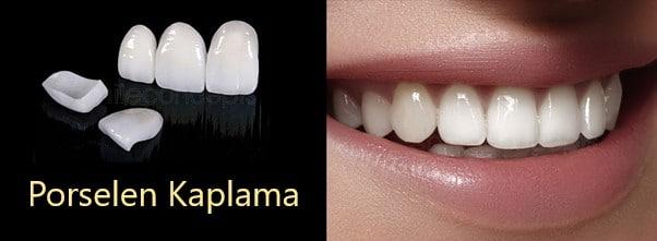 Bartın kişiye özel porselen diş tedavisi