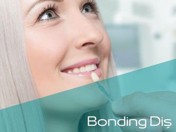Bartın bonding diş yapan doktorlar