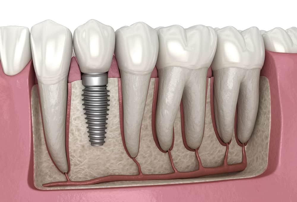 Bartın Dental İmplant Görsel