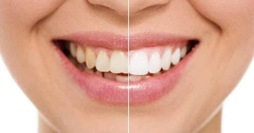 Bartın Diş Beyazlatma Tedavisi Öncesi Sonrası