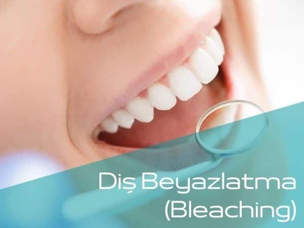Bartın diş beyazlatma yapan diş hekimleri