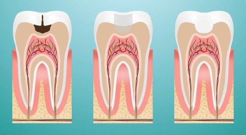 Bartın Diş Dolgu Tedavi Aşamaları