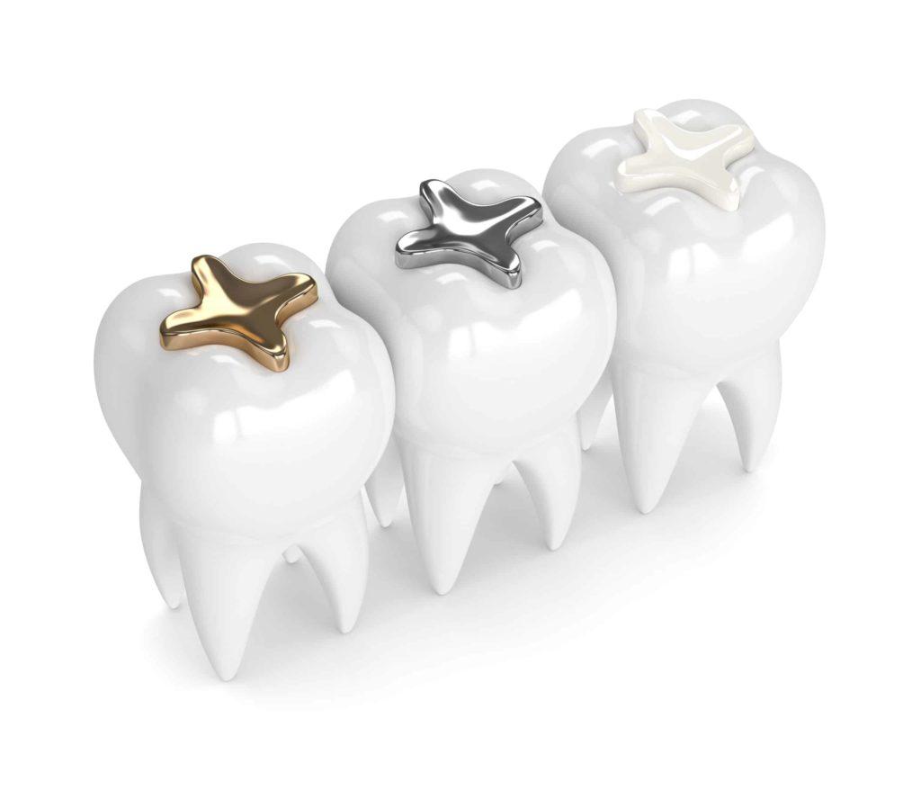 Bartın Diş Dolgu Tedavi Tipleri