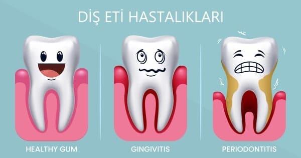 Bartın Diş Eti Hastalıkları Görsel Anlatım