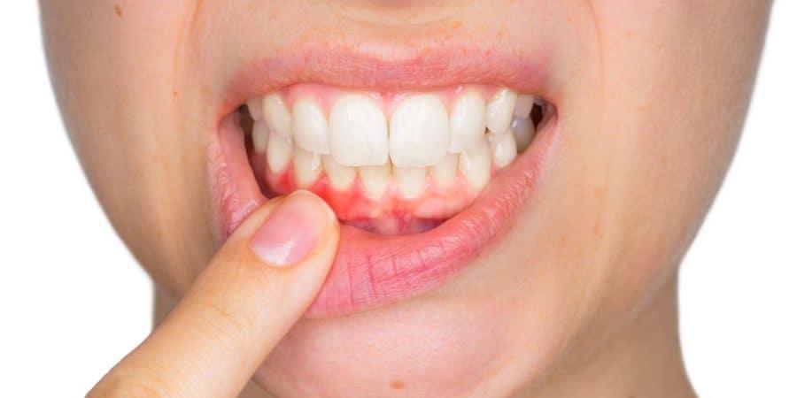 Bartın Diş Eti Hastalıkları Tedavi Öncesi