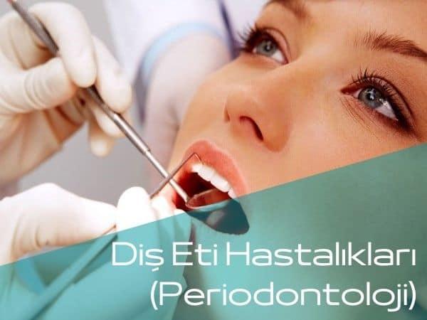 Bartın diş eti hastalıkları tedavisi yapan diş hekimleri