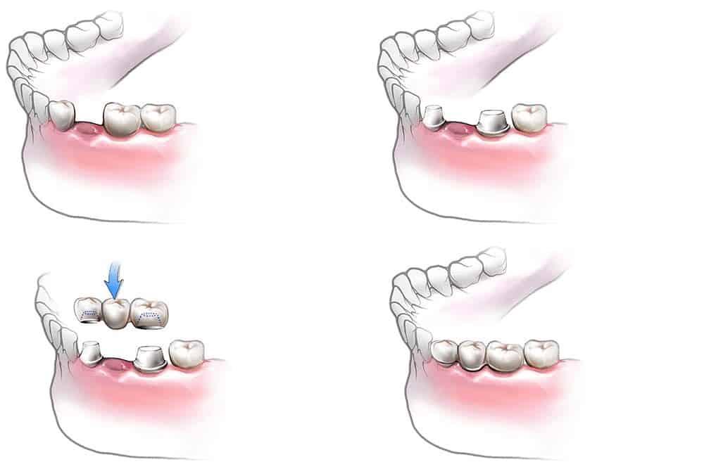 Bartın Diş Köprüsü Tedavi Aşamaları