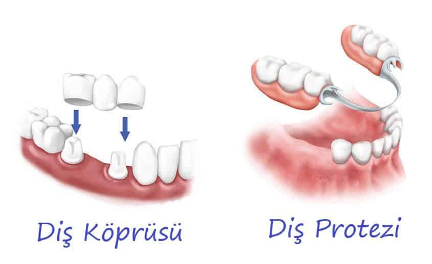 Bartın Diş Protezi ve Diş Köprüsü Farkları Resimli Anlatım