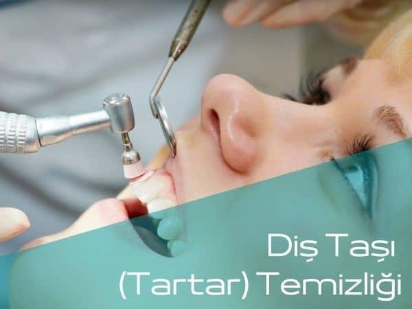 Bartın diş taşı temizliği yapan diş hekimleri