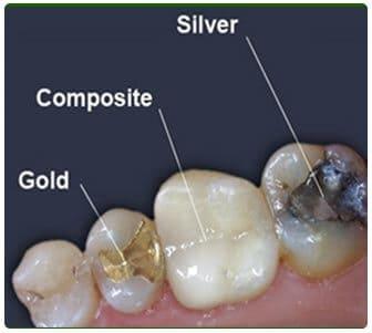 Bartın Dolgu Diş Tipleri