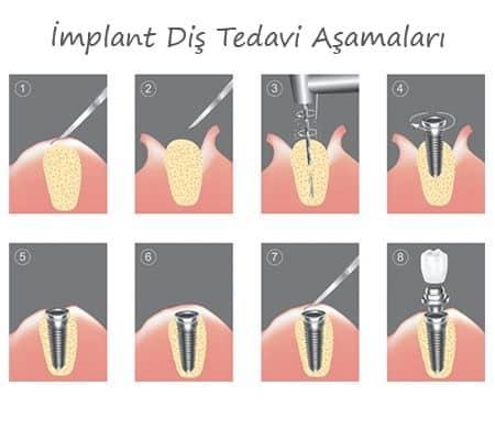 Bartın İmplant Diş Tedvi Aşamaları