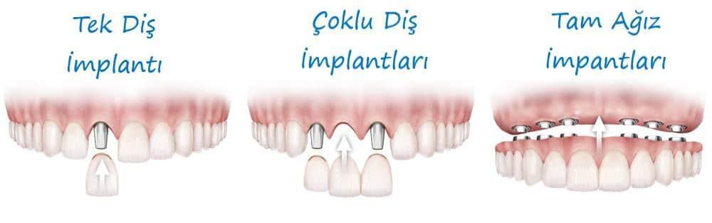 Bartın İmplant Diş Tedavi Seçenekleri