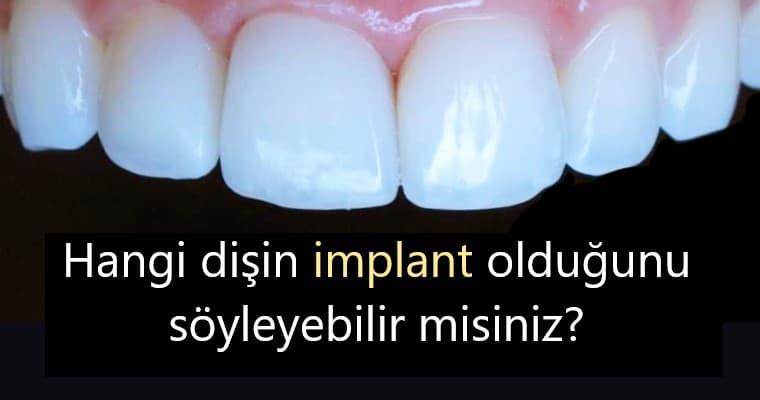 Bartın İmplant Diş Tedavi Sonrası