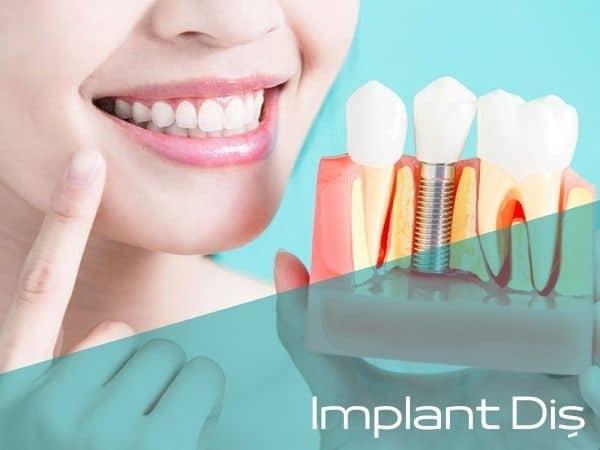 Bartın implant diş yapan doktorlar