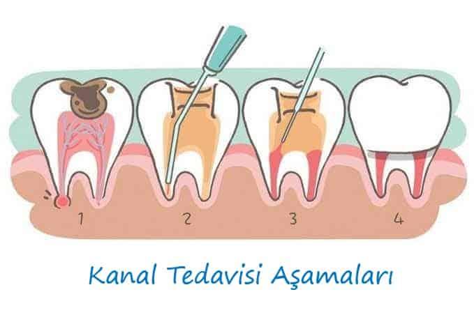 Bartın Kanal Tedavisi Aşamaları
