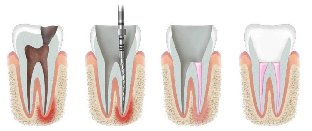 Bartın Kanal Tedavisi Prosedürleri