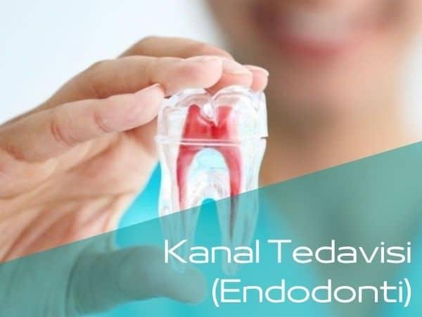 Bartın kanal tedavisi yapan diş hekimleri