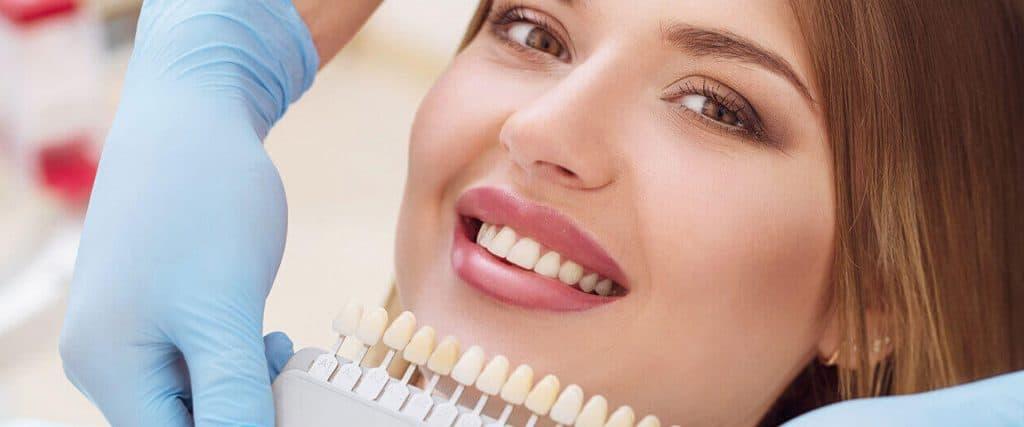 Bartın Kaplama Diş Fiyatları