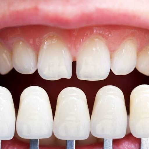 Bartın kişiye özel porselen diş yapımı