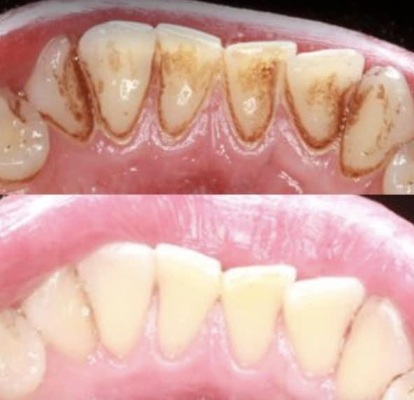 Bartın Profesyonel Diş Taşı Temizliği