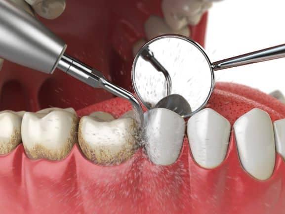 Bartın Ultrasonik Diş Taşı Temizliği