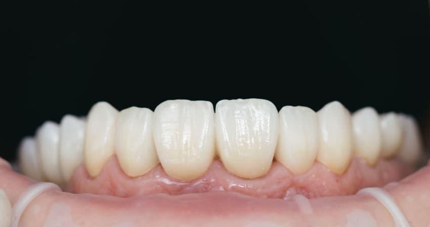 Bartın Zirkonyum Kaplama Yapılan Dişler