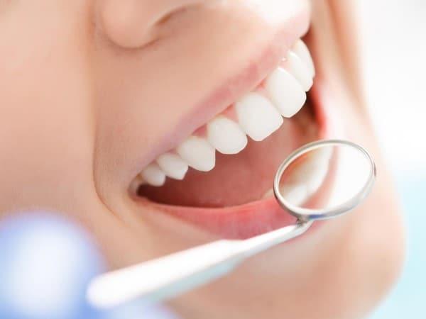 Diş Beyazlatma Resim