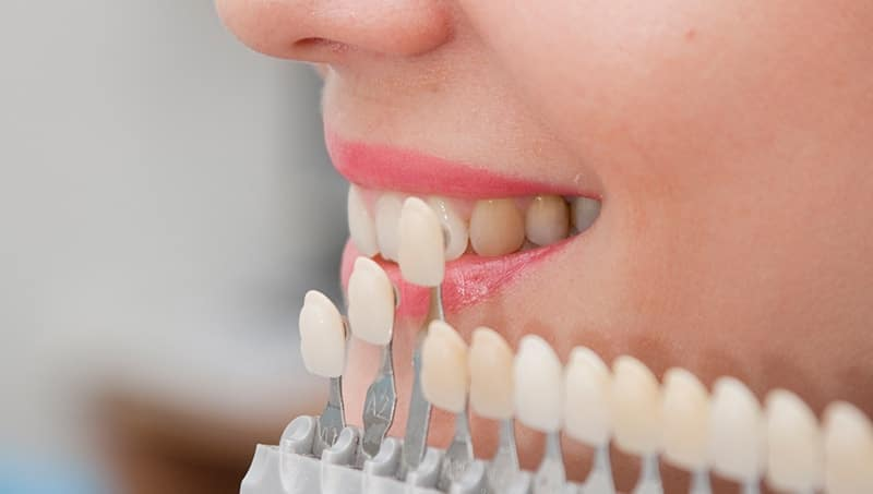 Porselen Diş Tedavisi Yapılan Dişler Bartın